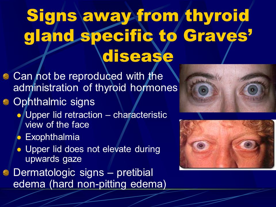 Signs away from thyroid gland specific to Graves' disease