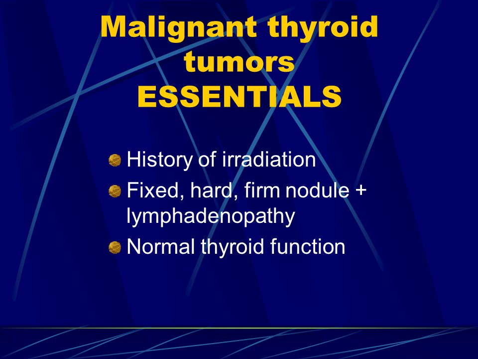 Malignant thyroid tumors ESSENTIALS