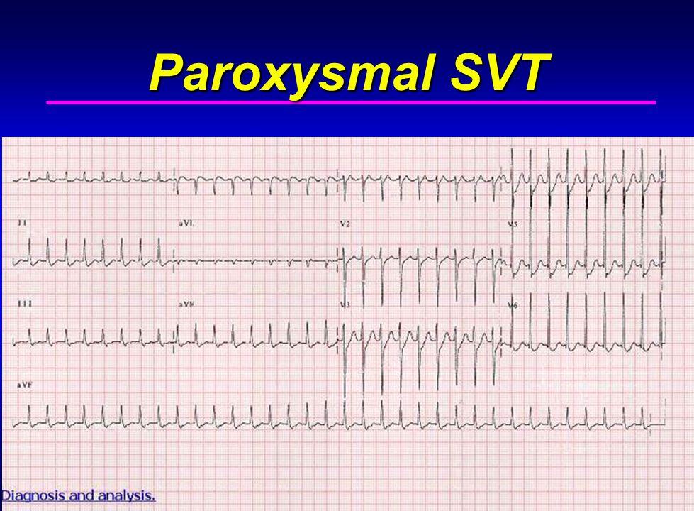 Paroxysmal SVT