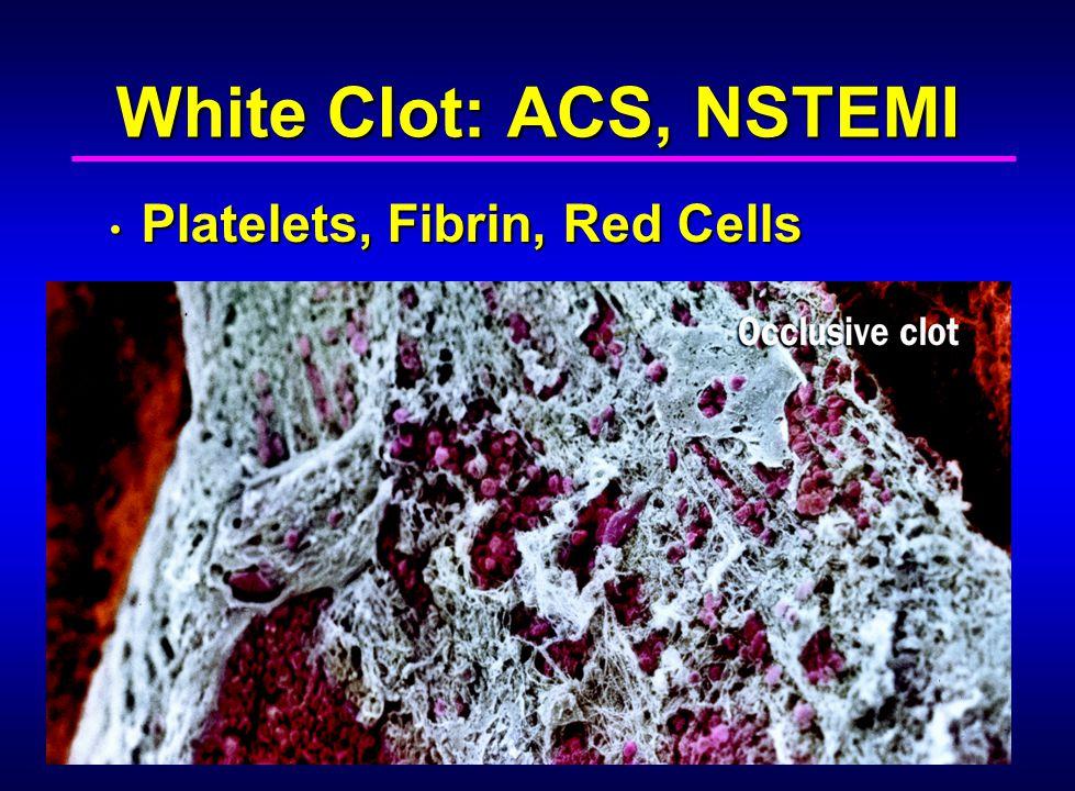 White Clot: ACS, NSTEMI Platelets, Fibrin, Red Cells