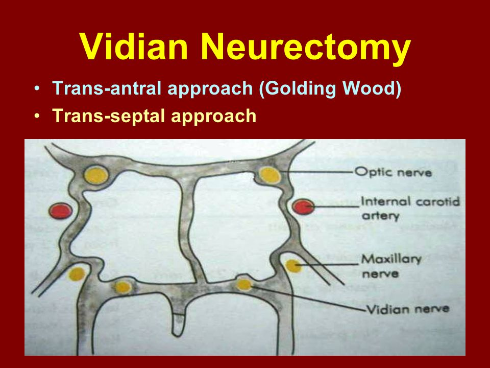 Vidian Neurectomy Trans-antral approach (Golding Wood)