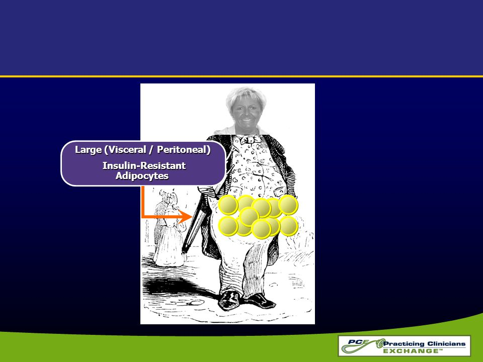 Large (Visceral / Peritoneal) Insulin-Resistant Adipocytes
