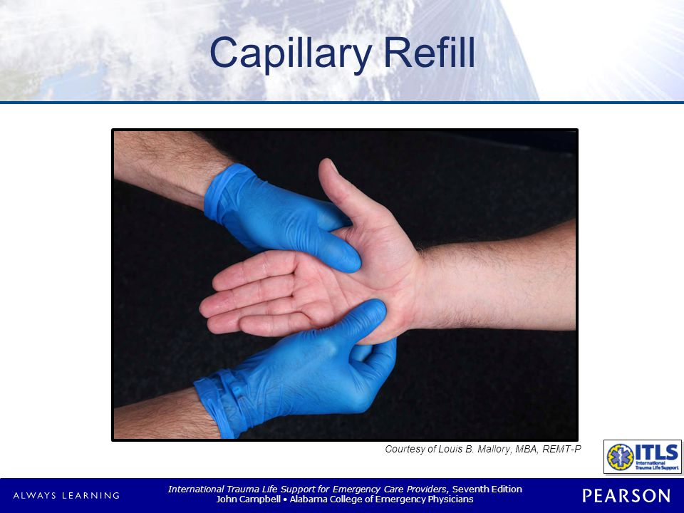 Capillary Refill NOTE: Progression.