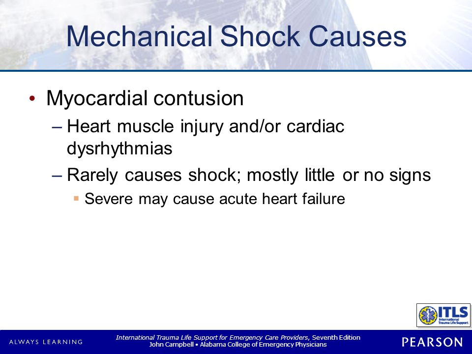 Mechanical Shock Causes