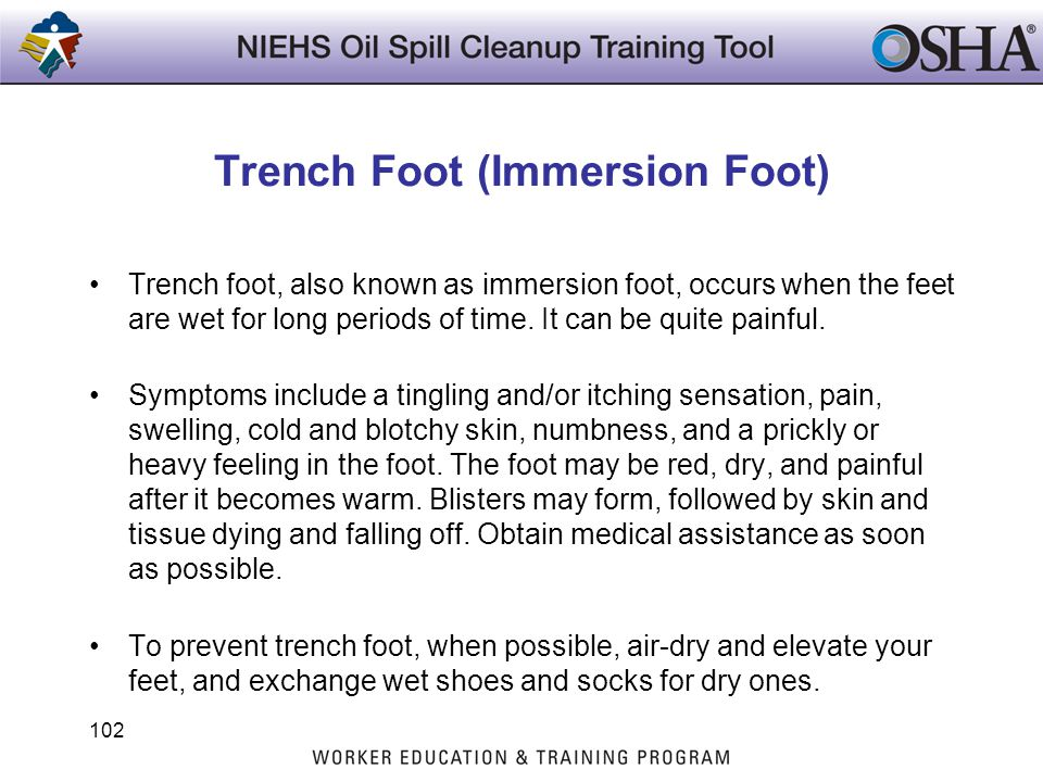 Trench Foot (Immersion Foot)