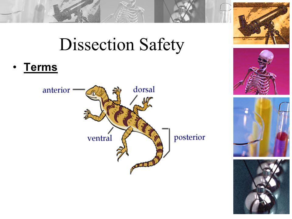 Dissection Safety Terms
