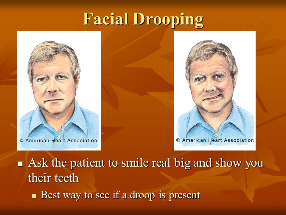Facial Drooping Ask the patient to smile real big and show you their teeth.