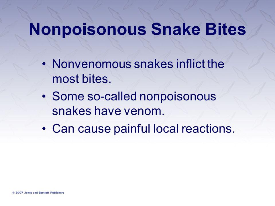 Nonpoisonous Snake Bites