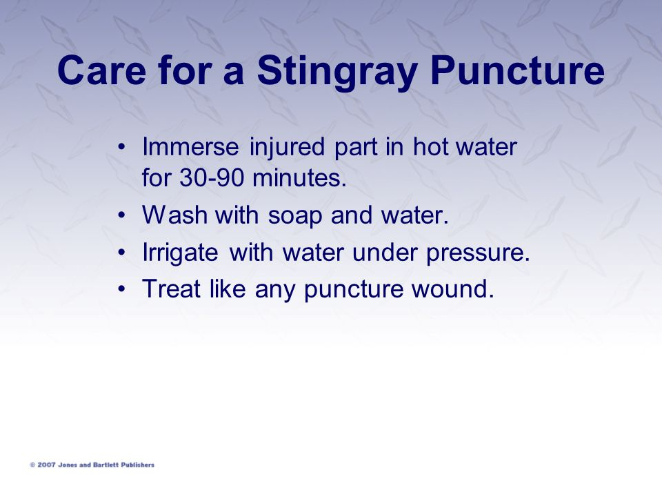 Care for a Stingray Puncture