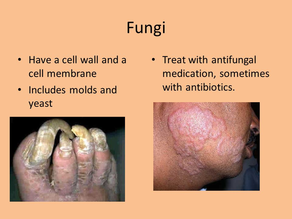 Fungi Have a cell wall and a cell membrane Includes molds and yeast