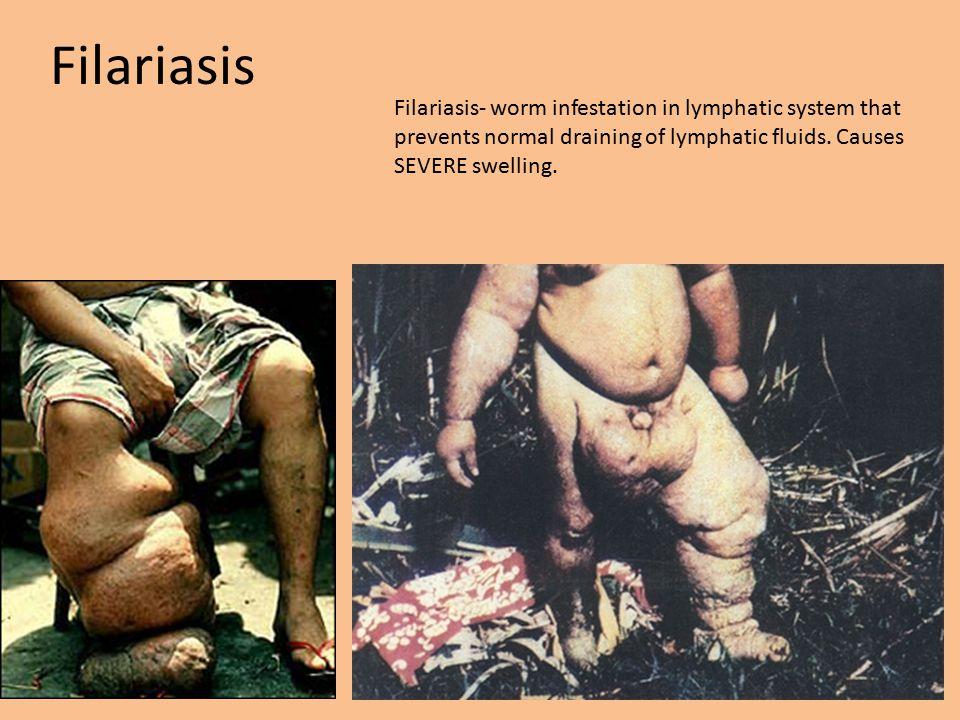 Filariasis Filariasis- worm infestation in lymphatic system that prevents normal draining of lymphatic fluids.