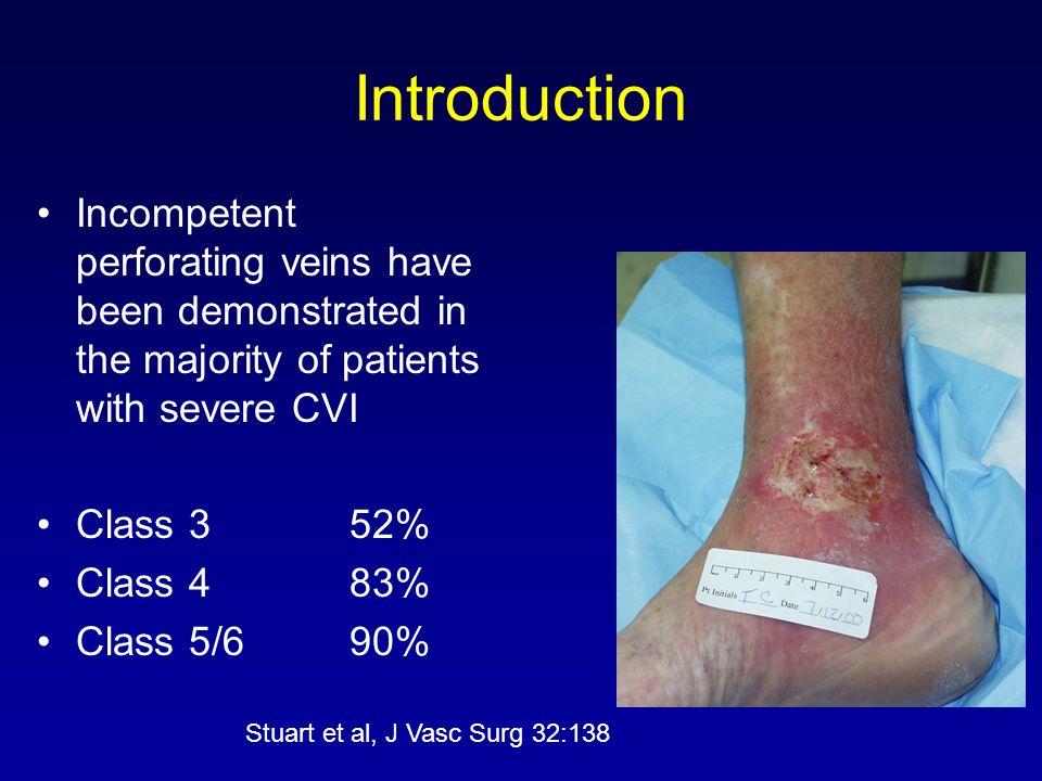 Introduction Incompetent perforating veins have been demonstrated in the majority of patients with severe CVI.