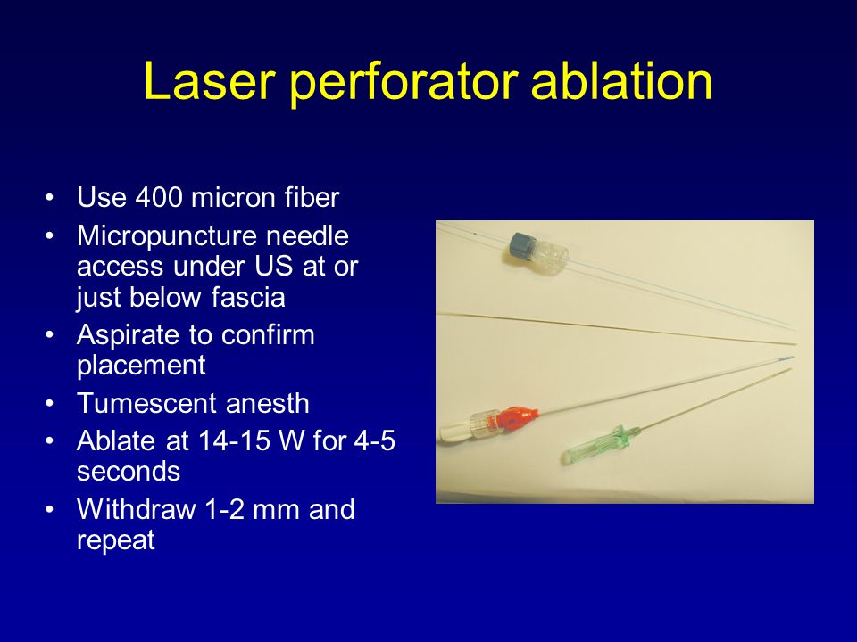 Laser perforator ablation
