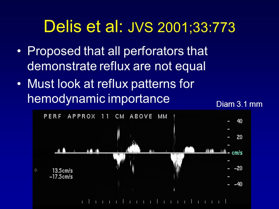Delis et al: JVS 2001;33:773 Proposed that all perforators that demonstrate reflux are not equal.