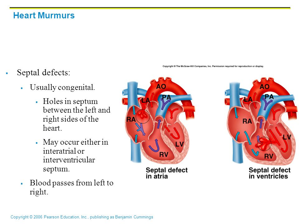 Septal defects: Heart Murmurs Usually congenital.
