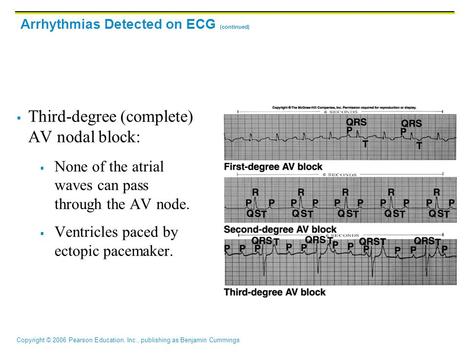 Arrhythmias Detected on ECG (continued)
