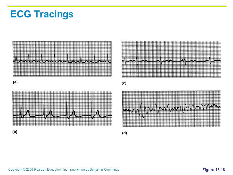 ECG Tracings Figure 18.18