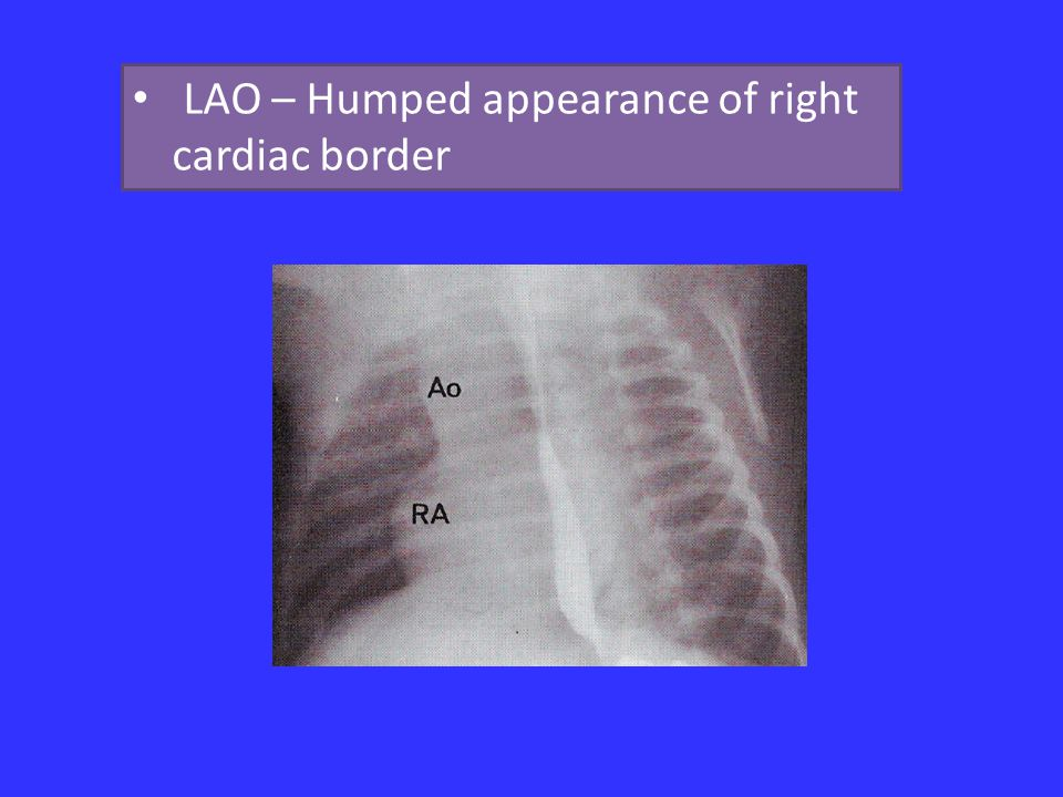 LAO – Humped appearance of right cardiac border