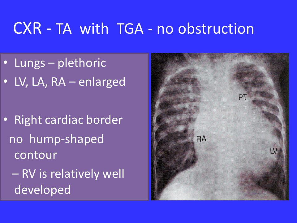 CXR - TA with TGA - no obstruction