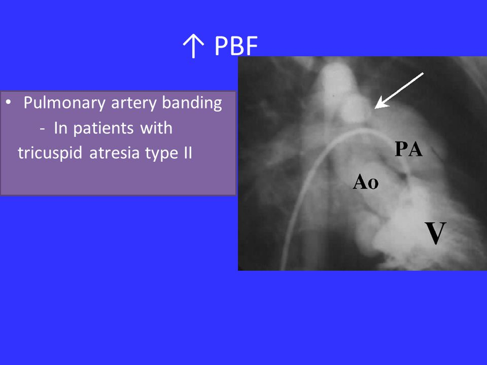 ↑ PBF Pulmonary artery banding - In patients with