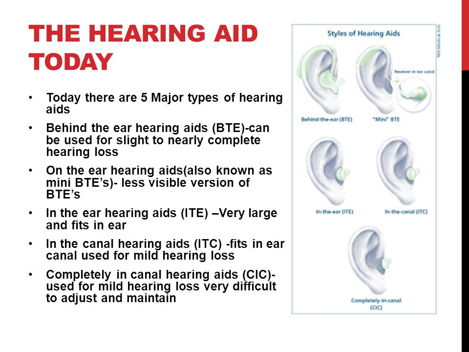 The hearing aid today Today there are 5 Major types of hearing aids