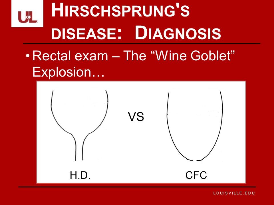Hirschsprung s disease: Diagnosis