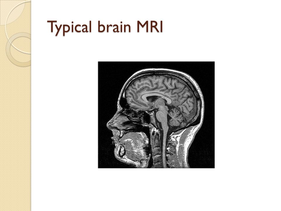 Typical brain MRI