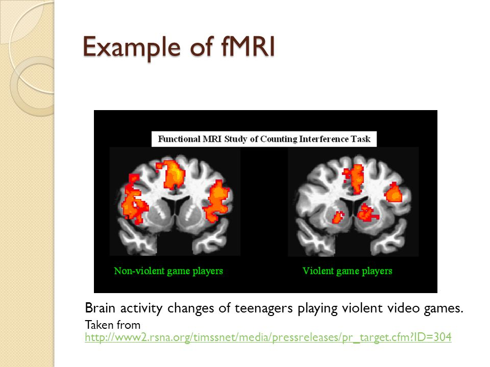 Example of fMRI Brain activity changes of teenagers playing violent video games.