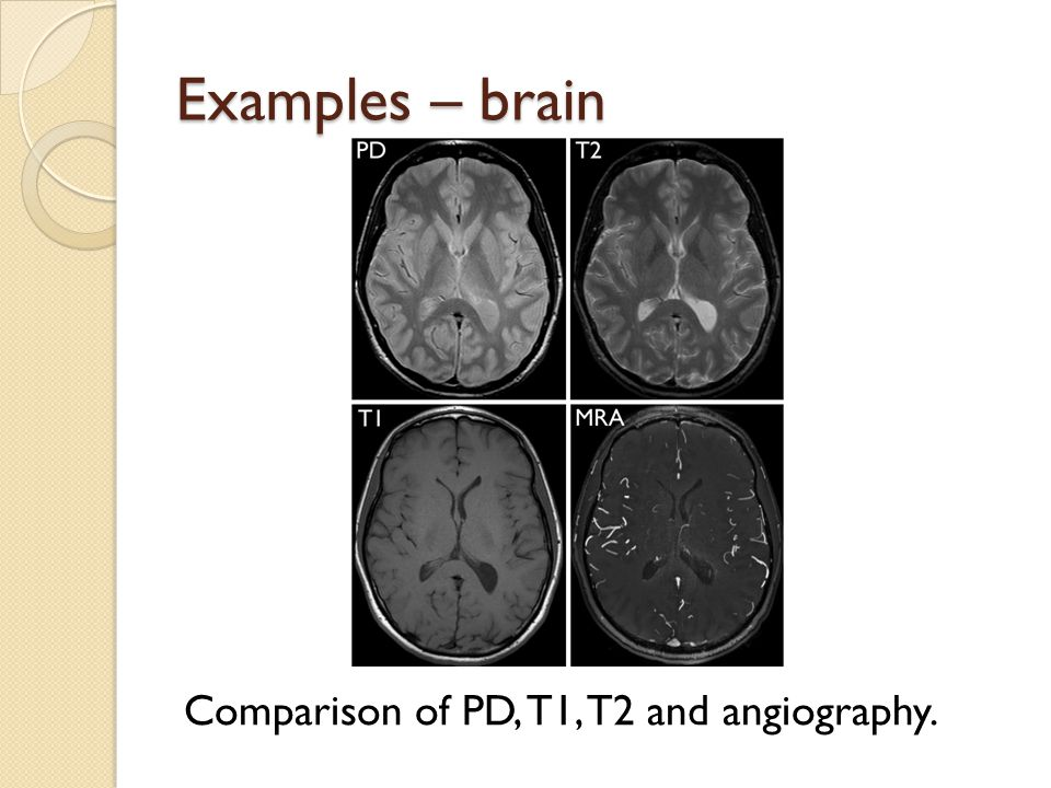 Examples – brain Comparison of PD, T1, T2 and angiography.