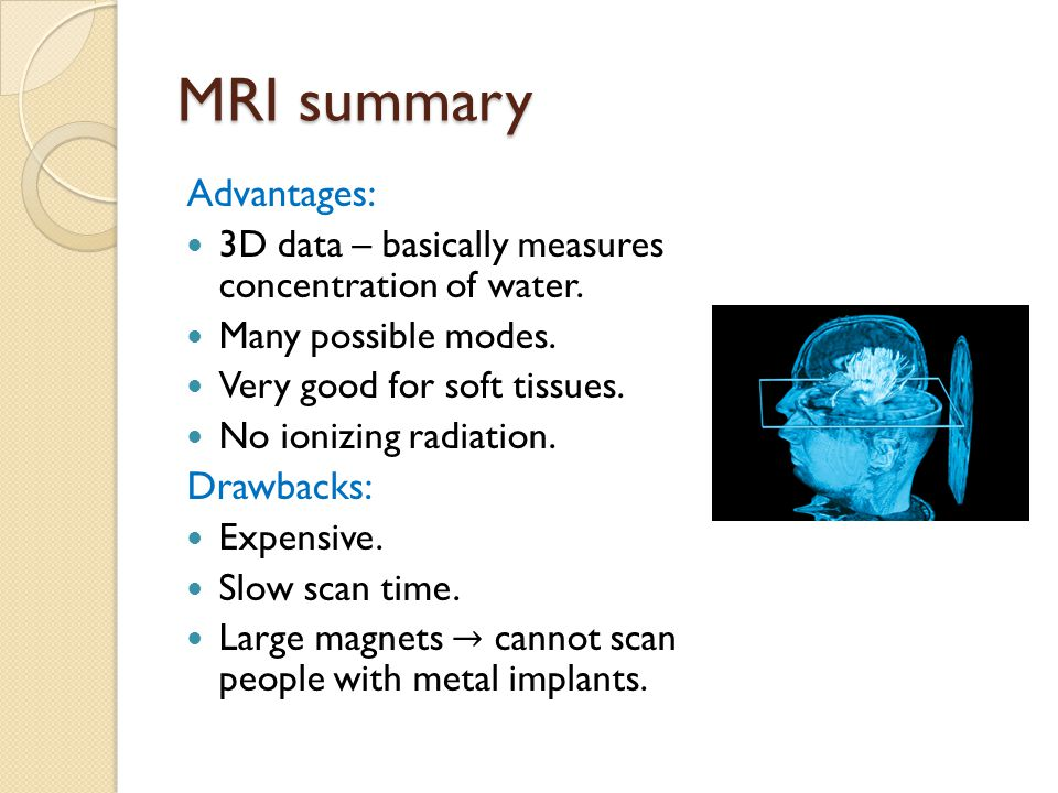 MRI summary Advantages: Drawbacks: