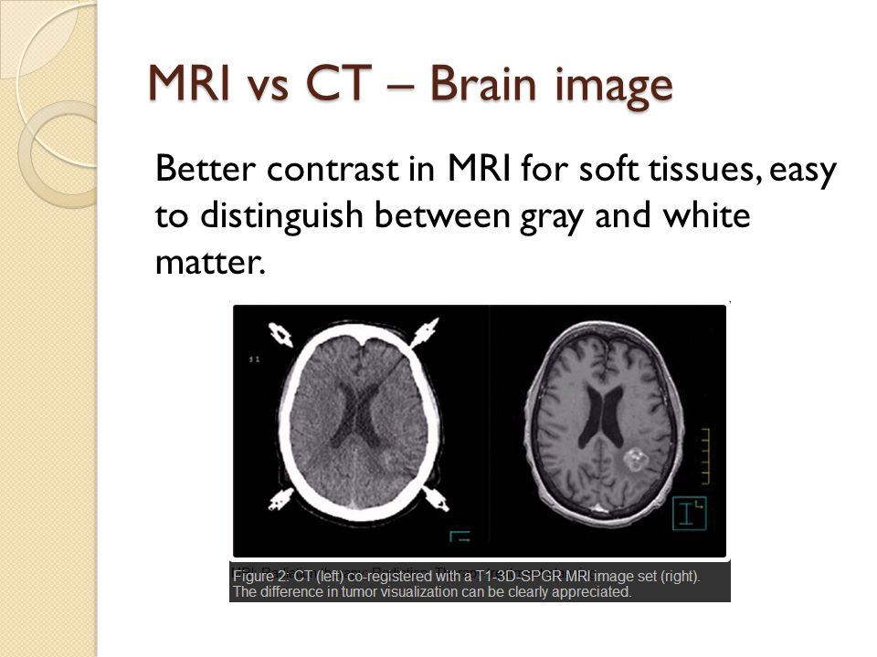 MRI vs CT – Brain image Better contrast in MRI for soft tissues, easy to distinguish between gray and white matter.