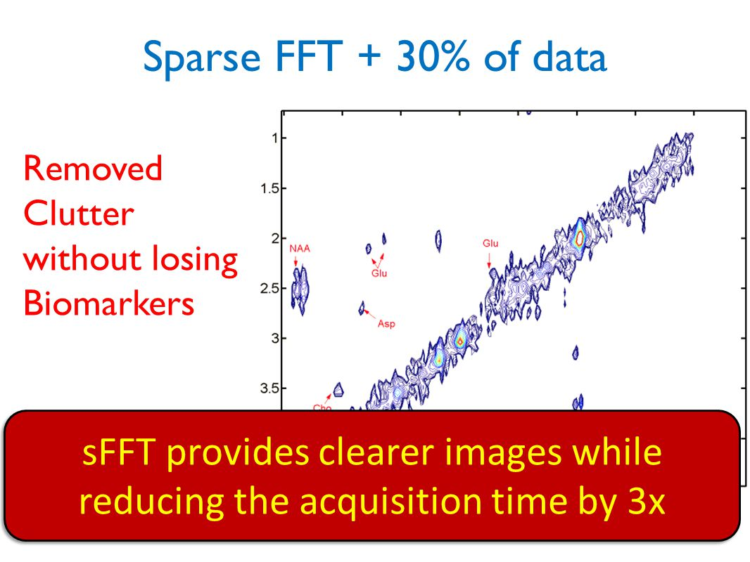 sFFT provides clearer images while reducing the acquisition time by 3x