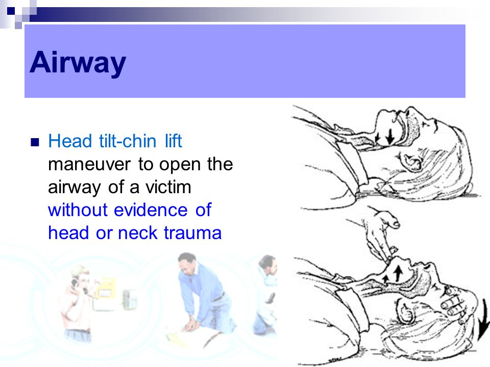 Airway Head tilt-chin lift maneuver to open the airway of a victim without evidence of head or neck trauma.
