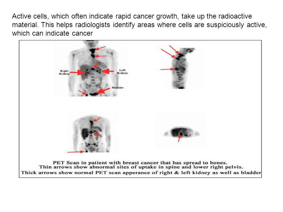 Active cells, which often indicate rapid cancer growth, take up the radioactive material.