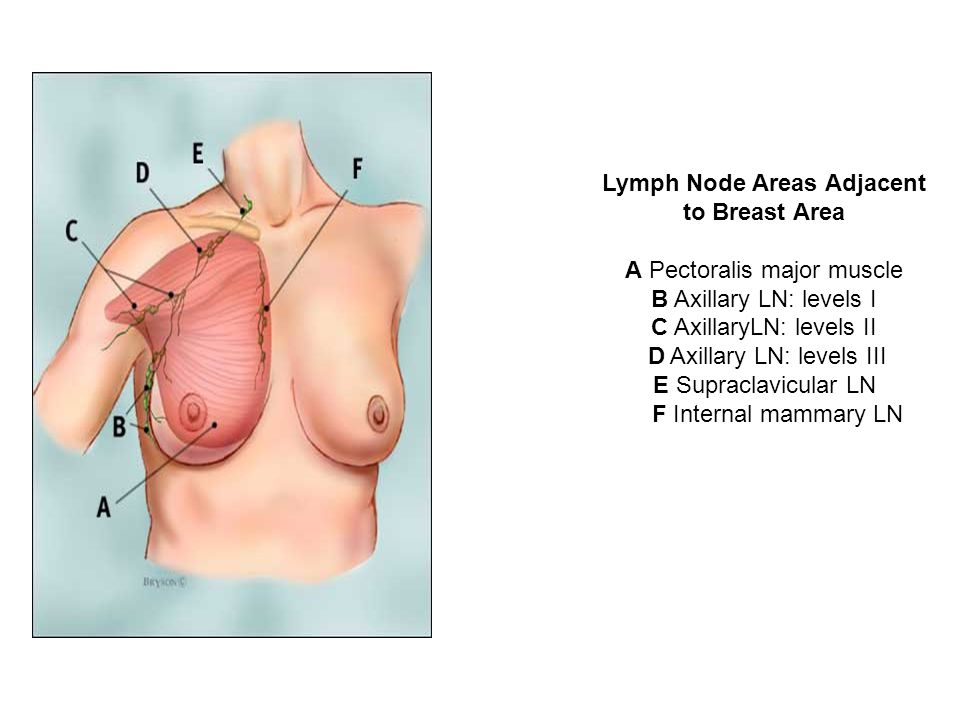 Lymph Node Areas Adjacent to Breast Area