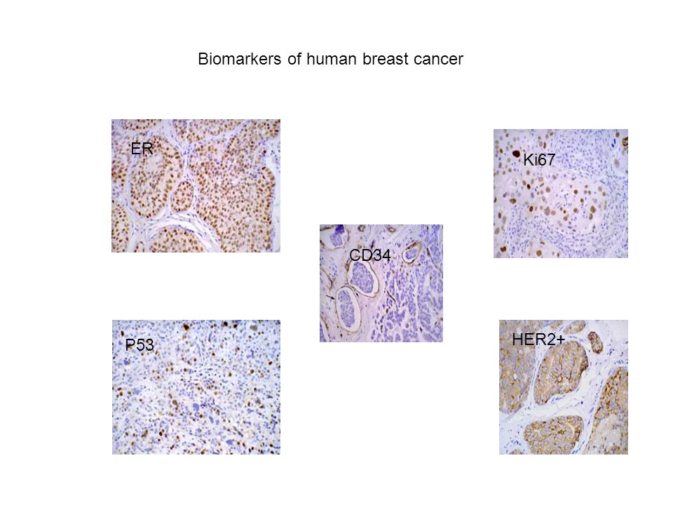 Biomarkers of human breast cancer