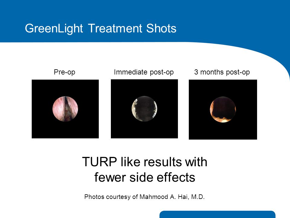 GreenLight Treatment Shots