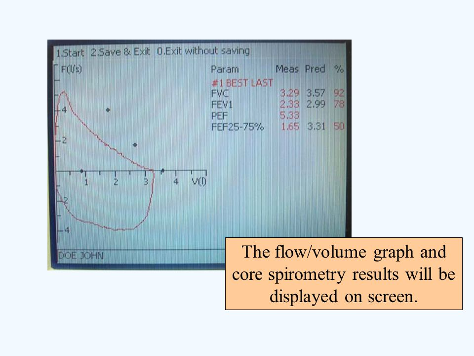 The flow/volume graph and core spirometry results will be displayed on screen.