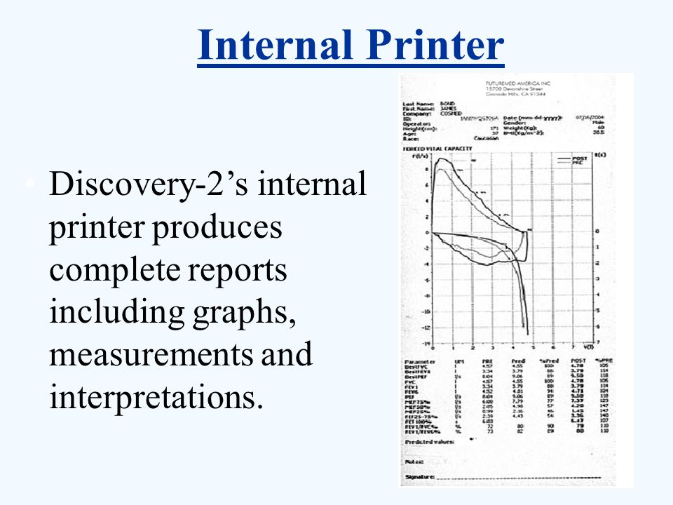 Internal Printer Discovery-2's internal printer produces complete reports including graphs, measurements and interpretations.