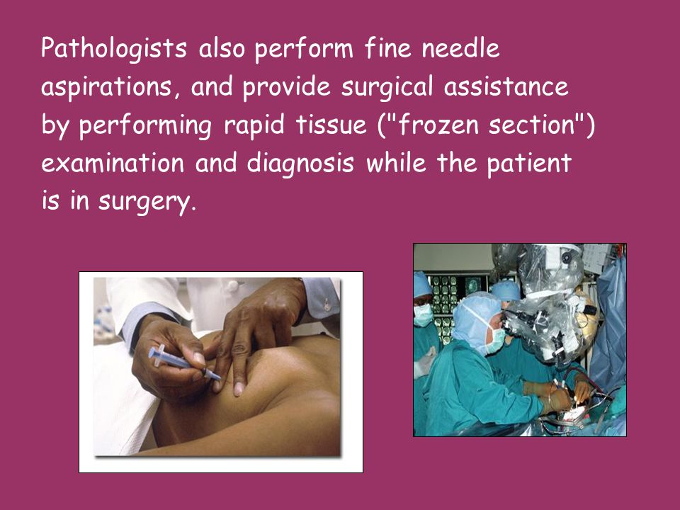 Pathologists also perform fine needle