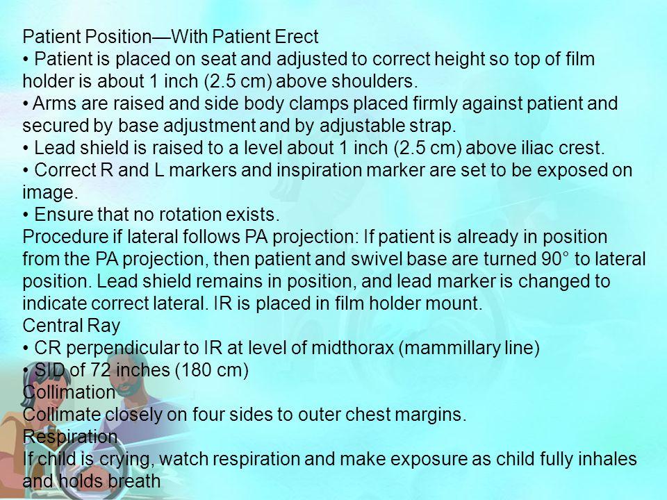 Patient Position—With Patient Erect