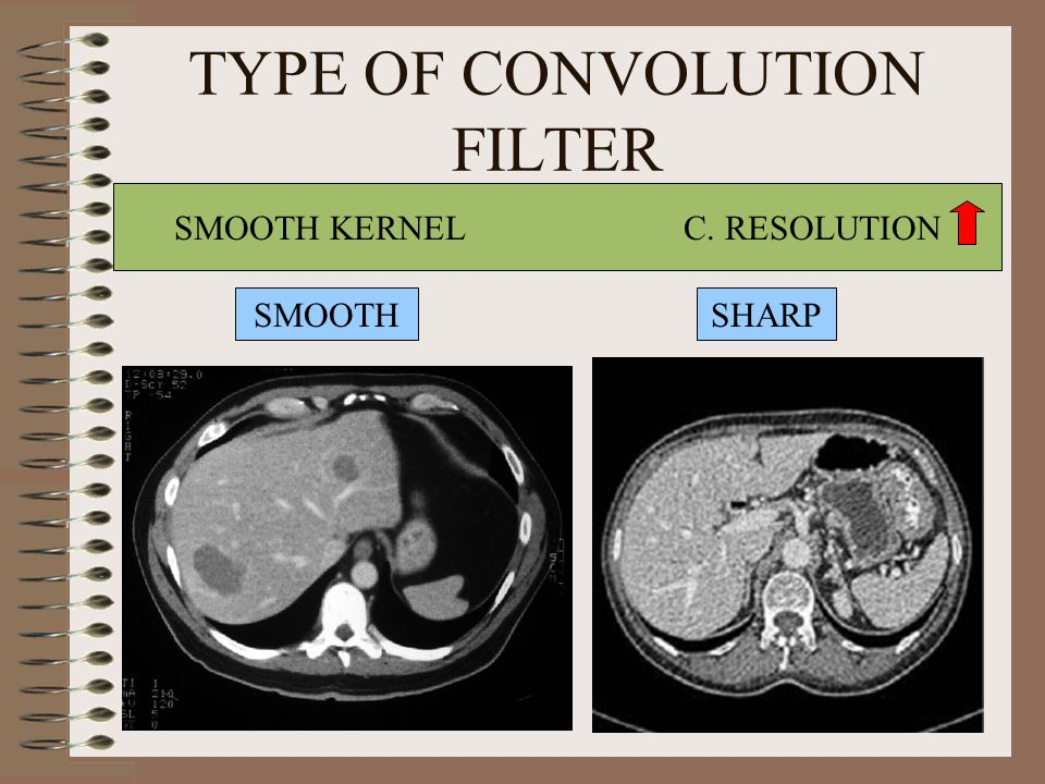 TYPE OF CONVOLUTION FILTER