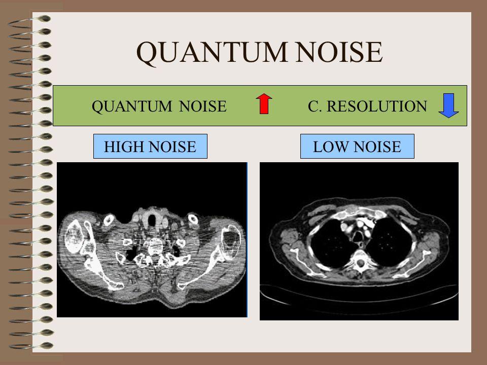 QUANTUM NOISE C. RESOLUTION