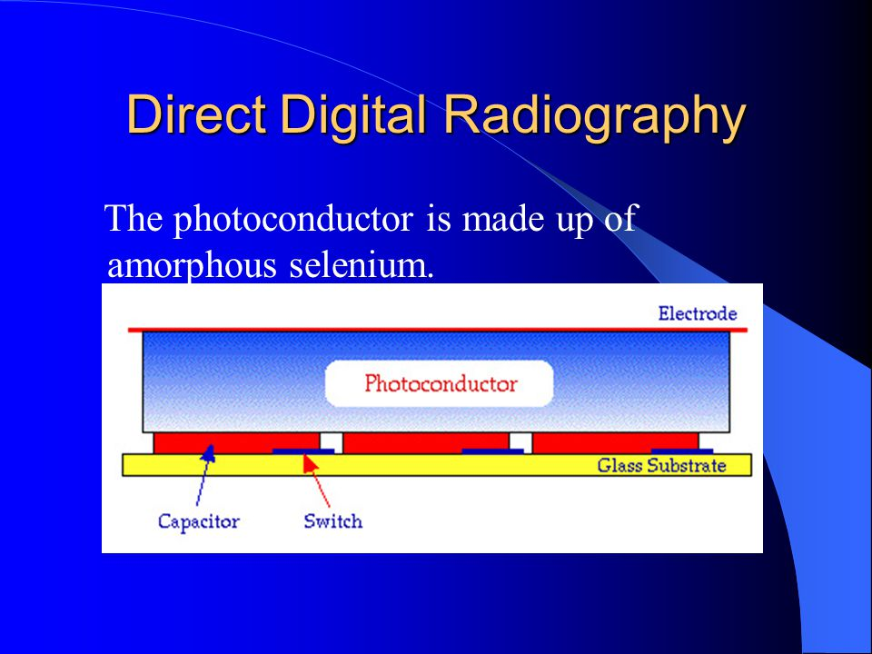 Direct Digital Radiography