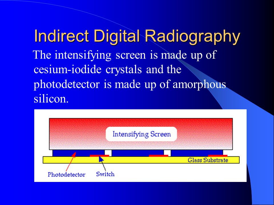 Indirect Digital Radiography