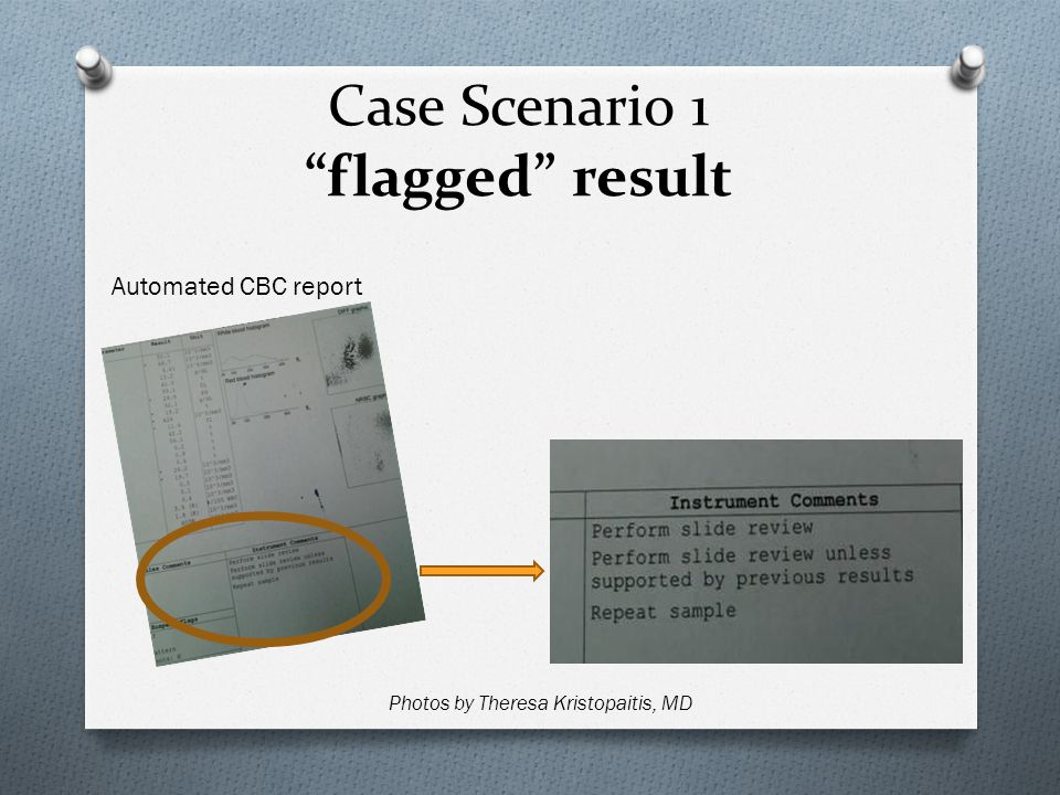 Case Scenario 1 flagged result