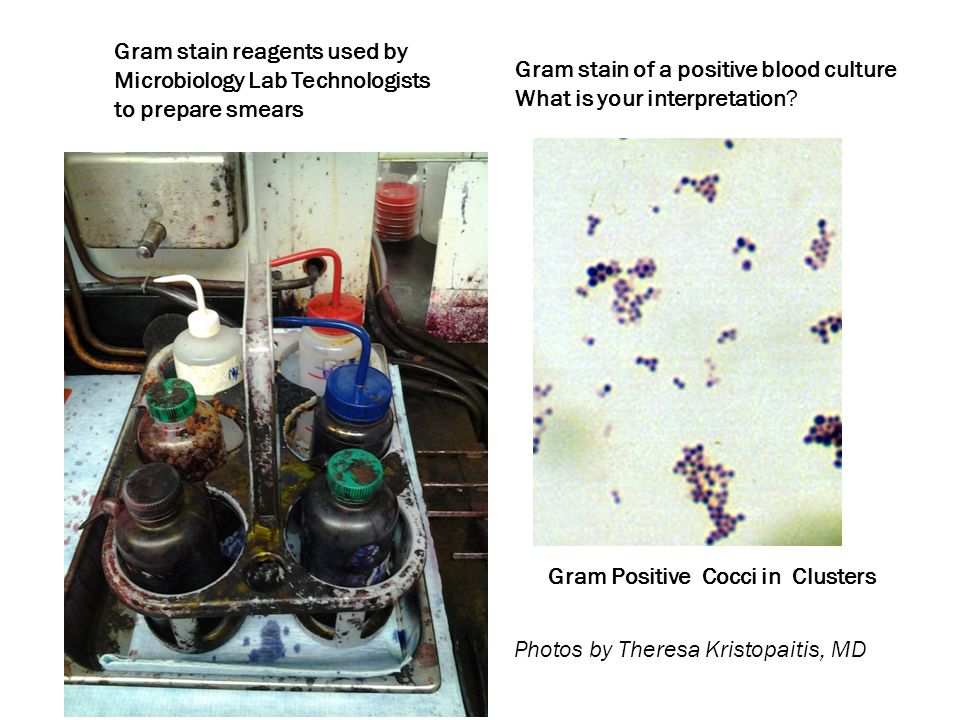 Gram stain reagents used by