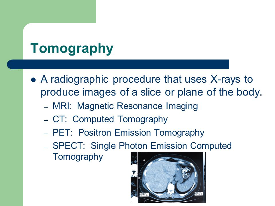 Tomography A radiographic procedure that uses X-rays to produce images of a slice or plane of the body.