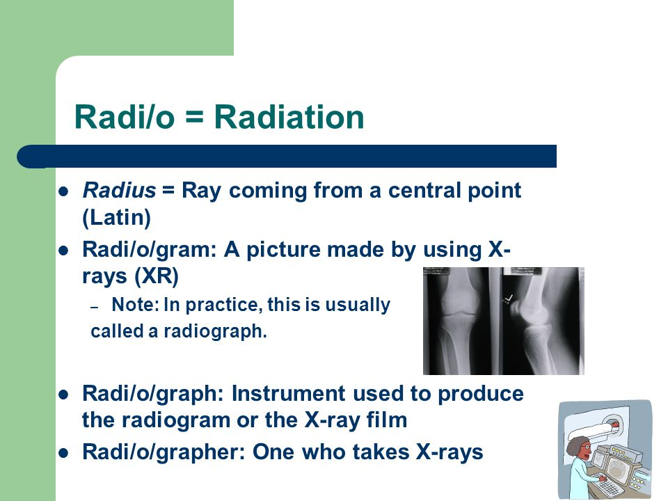 Radi/o = Radiation Radius = Ray coming from a central point (Latin)