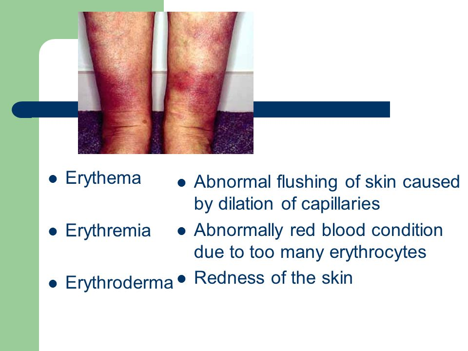 Erythema Erythremia. Erythroderma. Abnormal flushing of skin caused by dilation of capillaries.